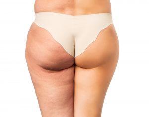 Cellulite Behandlung vorher und nacher