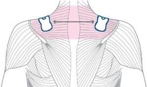 Schmerztherapie an der Schulter
